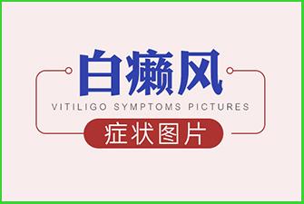 白癞风症状图片